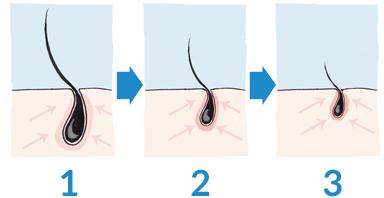 Effets du DHT sur la calvitie