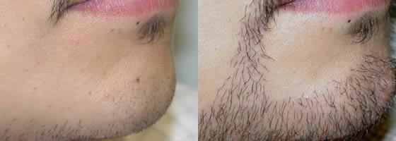 minoxidil barbe efficace ou pas